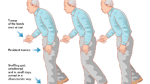 Movement Disorders Picture