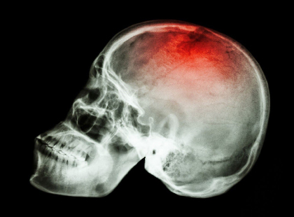 Traumatic Brain Injury & Concussions Service