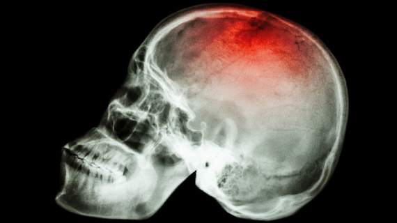 Traumatic Brain Injury & Concussions Picture